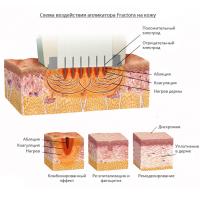 Насадка Fractora для фракционного омоложения, коррекции морщин и растяжек от Inmode Invasix