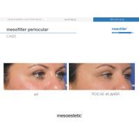 Mesoestetic Mesofiller Periocular